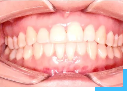 patient with underbite malocclusion after the treatment