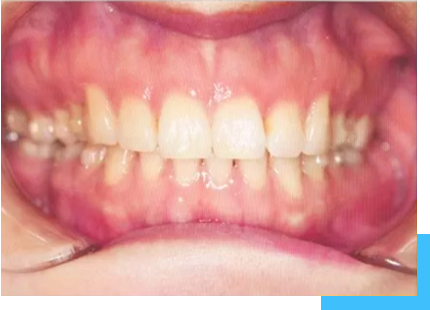 patient with spaced teeth malocclusion after the treatment