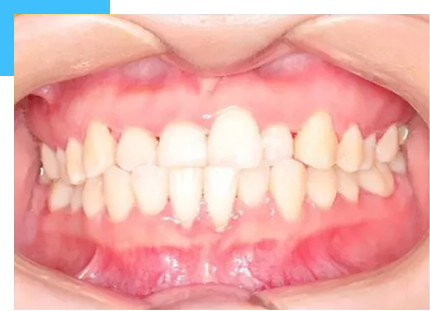 patient with underbite malocclusion before the treatment