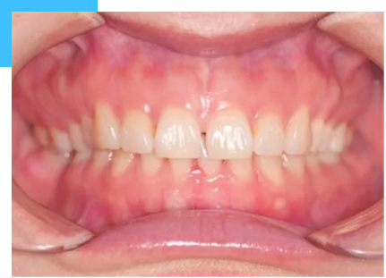 patient with spaced teeth malocclusion before the treatment