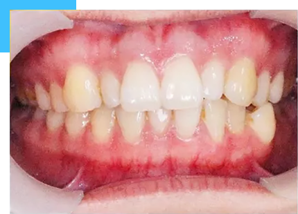 patient with crowded teeth malocclusion before the treatment